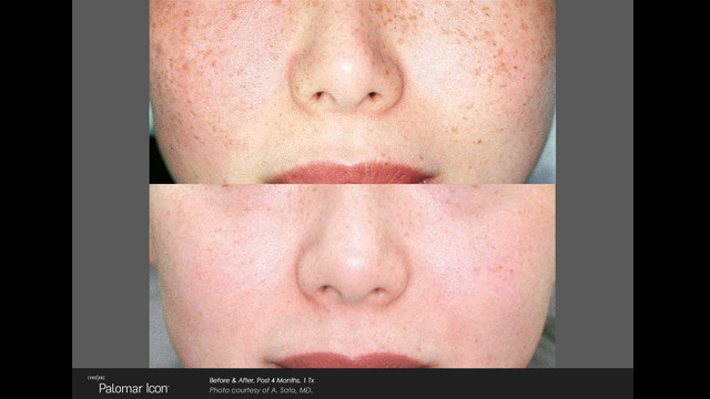 ICON Laser Before and After