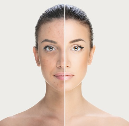 Woman before and after acne treatment