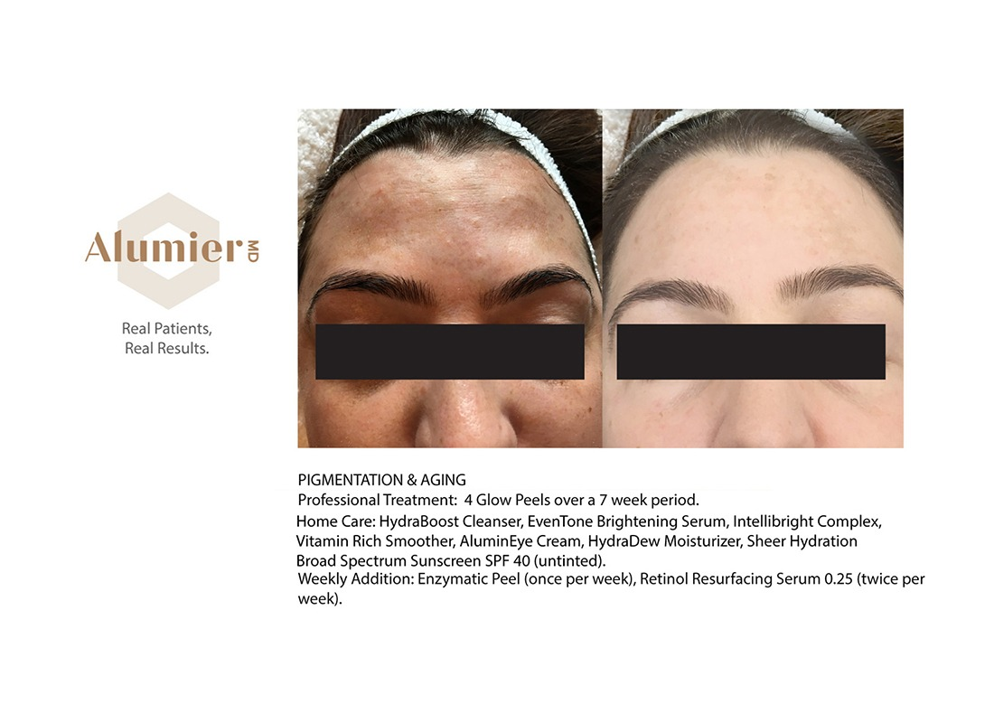 Alumier MD Before and After