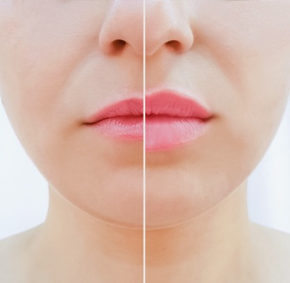 Before and after woman's lips from thin to thick
