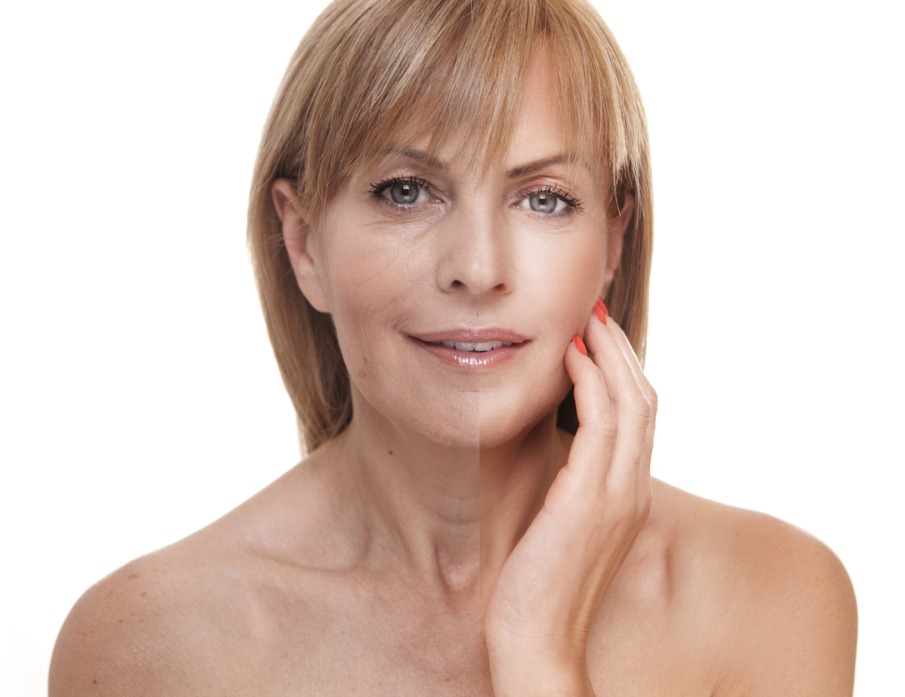 Woman with before and after Skin Rejuvenation